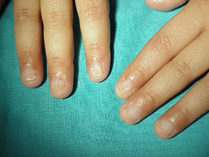 Dyskeratosis congenita: absent or hypoplastic nail plate.